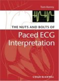 The Nuts and bolts of Paced ECG Interpretation (Nuts and Bolts Series)