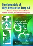 Fundamentals of High-Resolution Lung CT: Common Findings, Common Patterns, Common Diseases