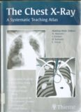 The Chest X-Ray-The Systematic Teaching Atlas.