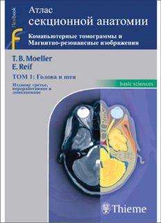 Pocket atlas of sectional anatomy : computed tomography and magnetic resonance imaging / Vol. 1, Head and neck / transl. [from the German]: Barbara Herzberger