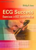 ECG Success Exercises in ECG Interpretation