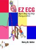 E-Z ECG Rhythm Interpretation (Basic Step-by-Step Interpretation)