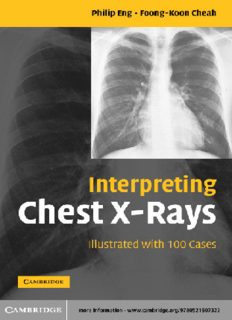Interpreting Chest X-rays