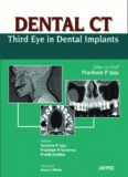 Dental CT: Third Eye in Dental Implants
