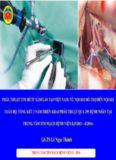 ứng dụng phẫu thuật nội soi trong phẫu thuật tim hở trung tâm tim mạch bệnh vi