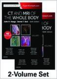 CT and MRI of the Whole Body, 2-Volume Set, 6e, Volume I