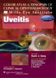Color Atlas & Synopsis of Clinical Ophthalmology - Wills Eye Institute Uveitis-